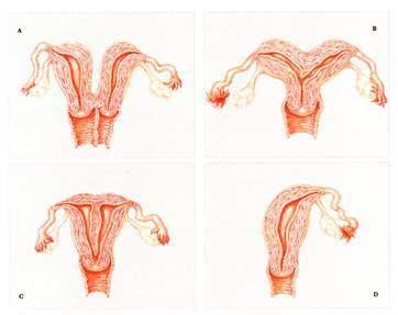 Nguyên nhân từ mẹ có hình dáng tử cung bất thường