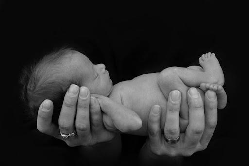 Chuẩn đoán trước sinh về hội chứng