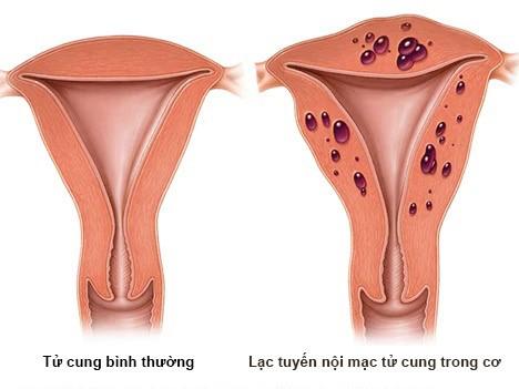 Lạc nội mạc tử cung là căng bệnh phụ khoa thường gặp ở nhiều phụ nữ