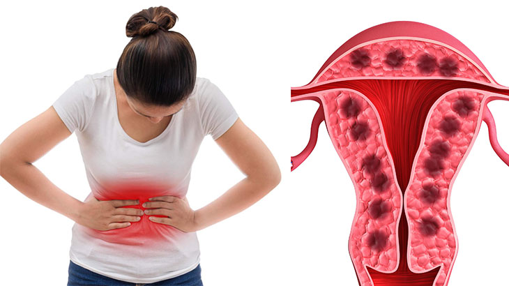 Lạc nội mạc tử cung: những điều bạn cần biết
