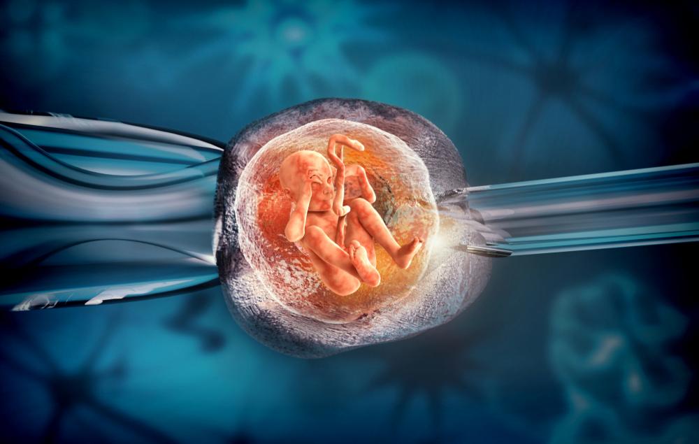 có thể sử dụng phương pháp thụ tinh nhân tạo nếu có nếu có dấu hiệu tắc vòi trứng
